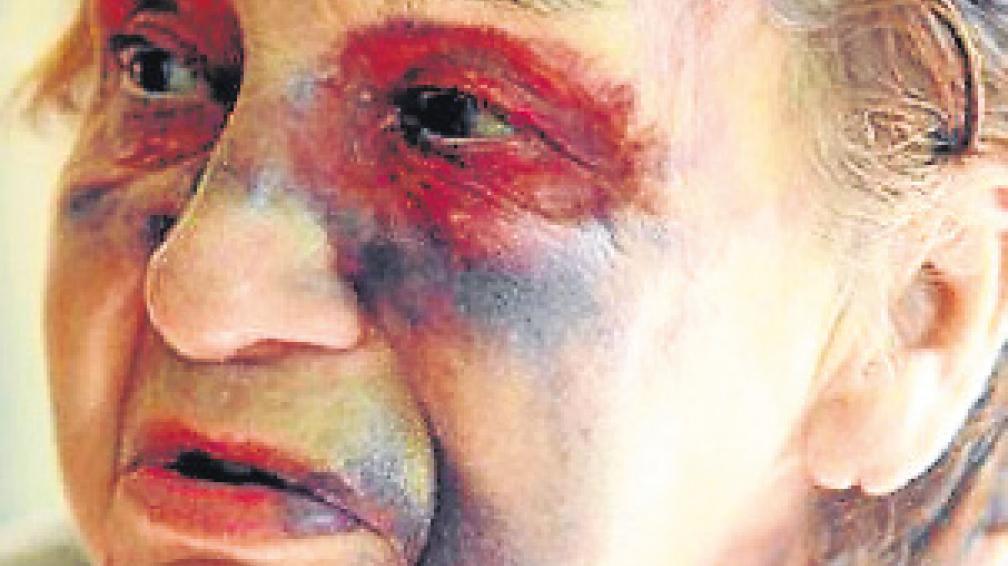 Nora Centeno. Madre de Plaza de Mayo que fue golpeada por delincuentes.